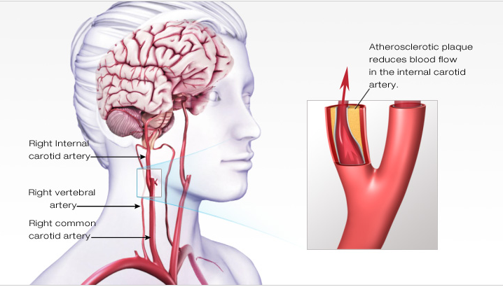 stroke causes symptoms diagnosis and treatment pdf  Symptoms of a Stroke - Amy Speech